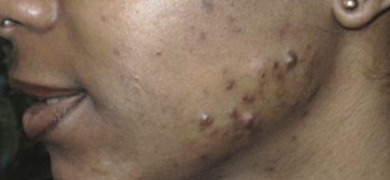 MIS EN AVANT acné chez la femme