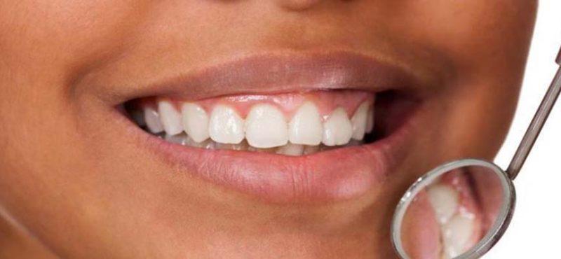 mis en avant Santé Dentaire